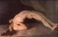 Painting showing spasms in a patient suffering from tetanus by Sir Charles Bell.